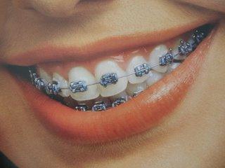 Quanto custa um aparelho ortodontico