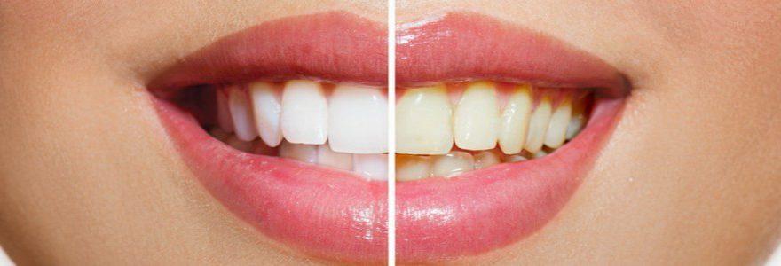 10 Coisas Que Voce Precisa Saber Sobre O Clareamento Dental Sorria