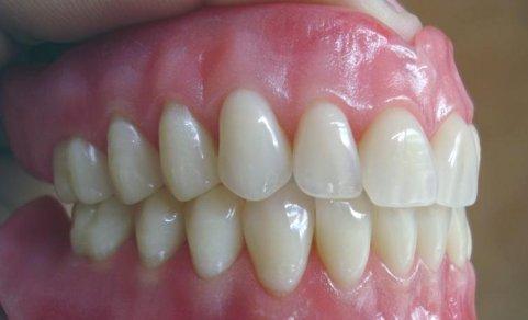7 dicas para quem usa prótese dentária