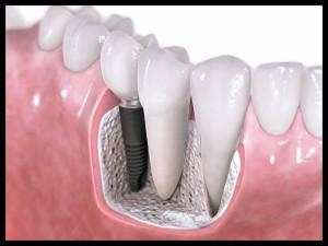 4 mitos sobre as próteses dentárias