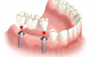 tipos de prótese dentária