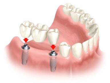 Conheca Os Tipos Vantagens E Desvantagens De Cada Protese Dentaria