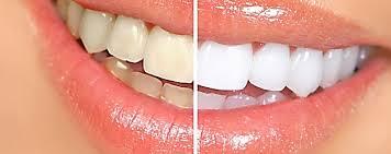 Clareamento Dental Caseiro Passo A Passo Dentalprev