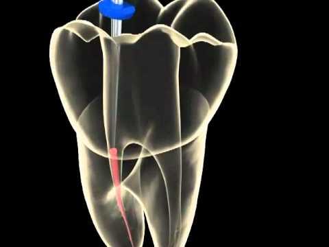 O que é endodontia?
