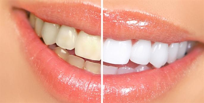 Saiba como a limpeza dental ajuda a clarear os dentes
