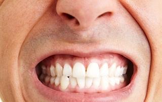 bruxismo-ranger-os-dentes4-320x202