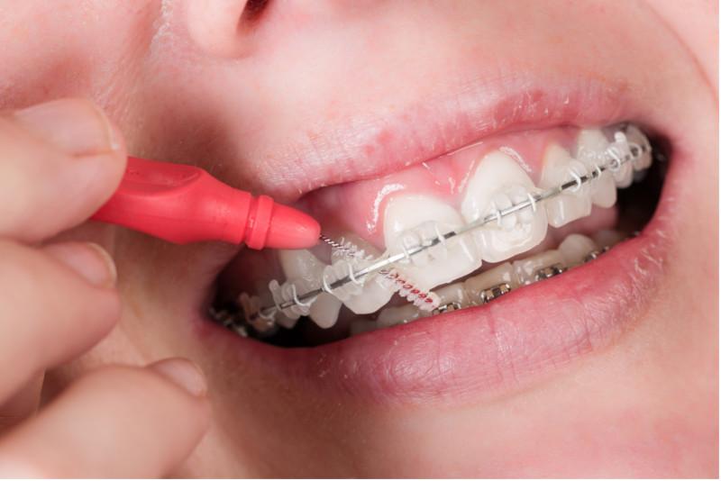 Dicas De Como Limpar O Aparelho Ortodontico Sorria Dentalprev