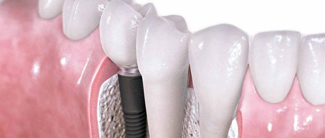 5 principais dúvidas sobre implante dental