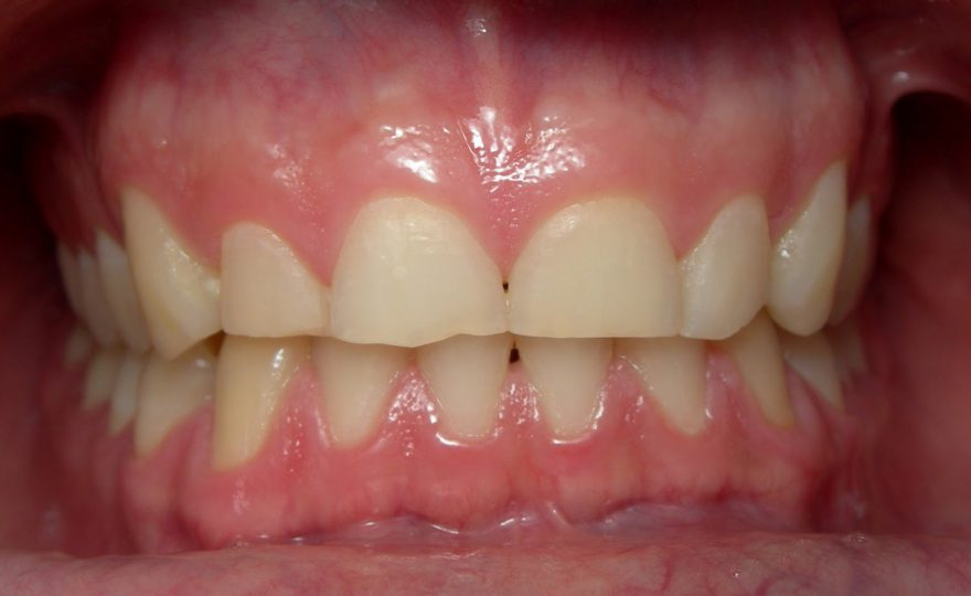 Como acabar com o ranger dos dentes noturno
