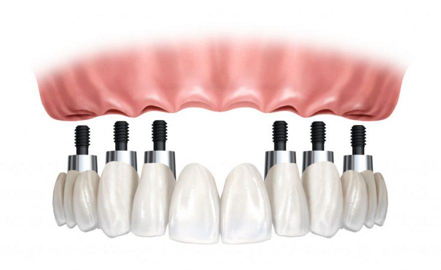 Dói fazer um implante dental?