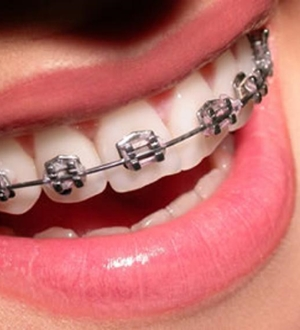 Colocar aparelho dentário dói?