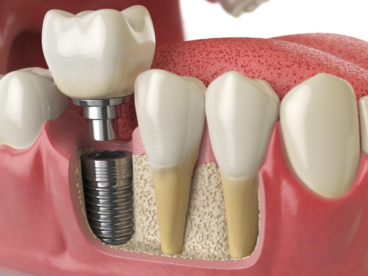 Tudo o que você precisa saber sobre implante dentário