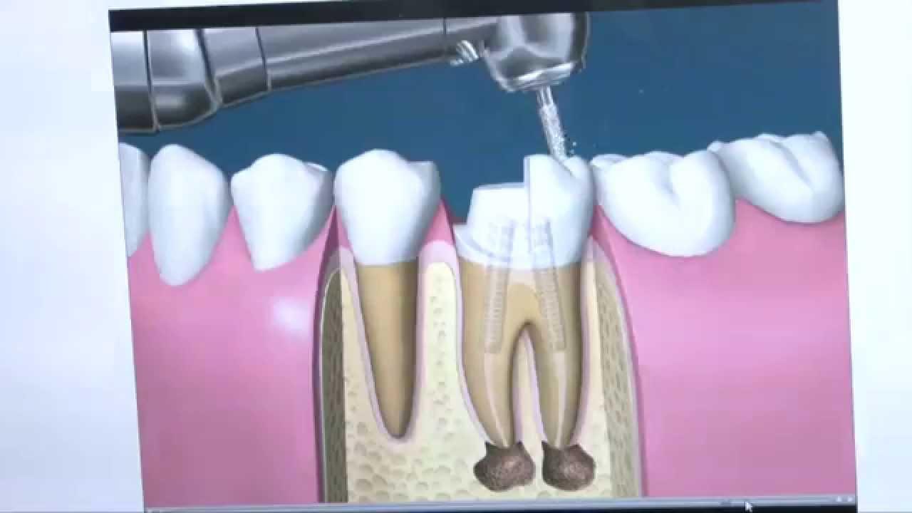 Conheça o passo a passo de um tratamento de canal