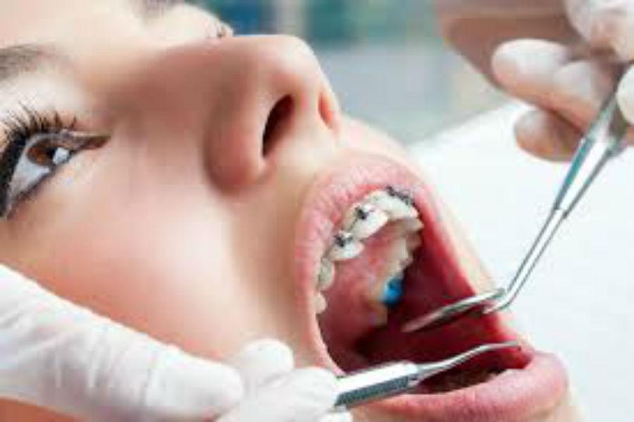 O que fazer antes de iniciar o tratamento com aparelho ortodôntico