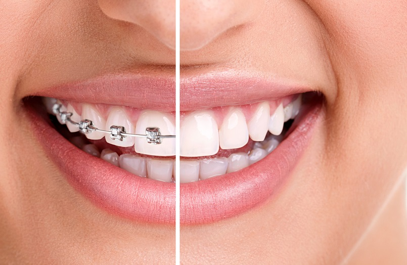 Implante dentário e aparelho ortodôntico: é possível ter os dois?