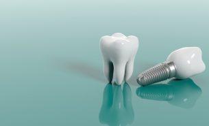 5 principais dúvidas sobre implante dentário