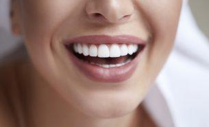 Alimentos que escurecem os dentes